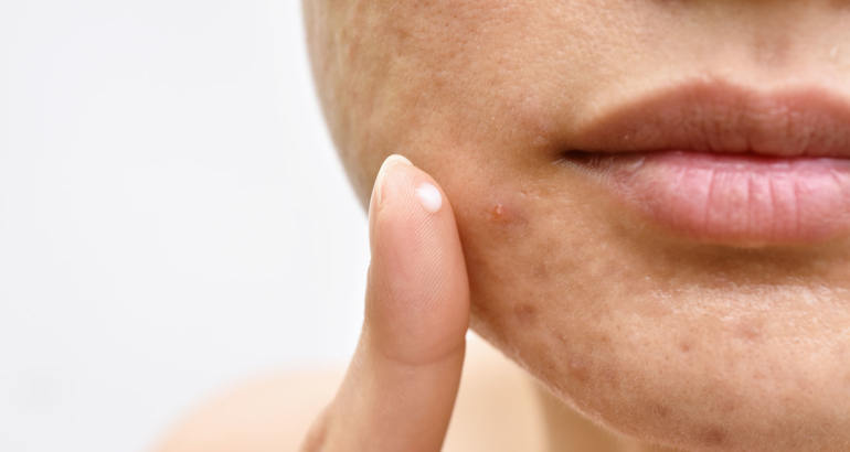 Ultimate Guide to Acne and Scarring Treatment