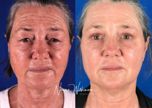 stem cell before and after